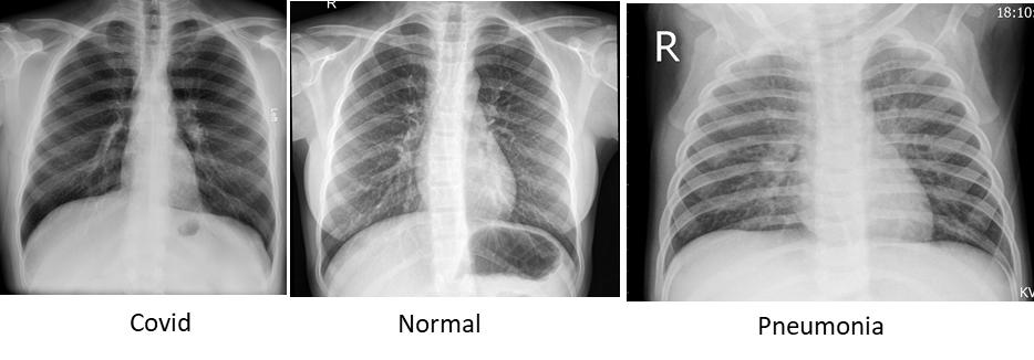 Sample Images of Chest X Rays